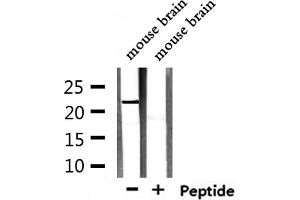 Image no. 2 for anti-Transcription Elongation Factor A (SII)-Like 5 (TCEAL5) antibody (ABIN6265494)