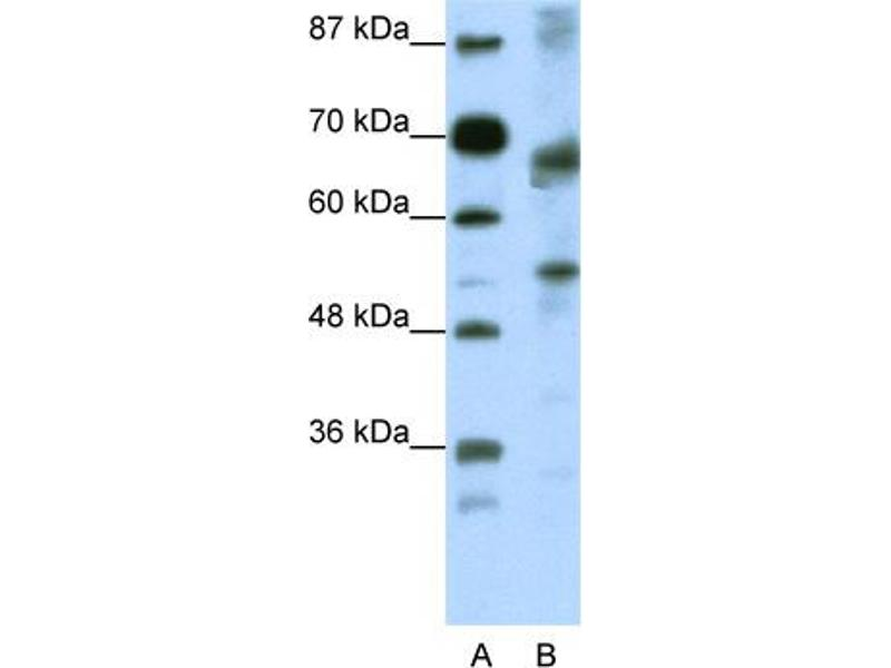 Western Blotting (WB) image for anti-TCF12 Antikörper (Transcription Factor 12) (N-Term) (ABIN2780487)
