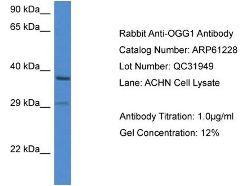 Western Blotting (WB) image for anti-8-Oxoguanine DNA Glycosylase (OGG1) (C-Term) antibody (ABIN2788728)