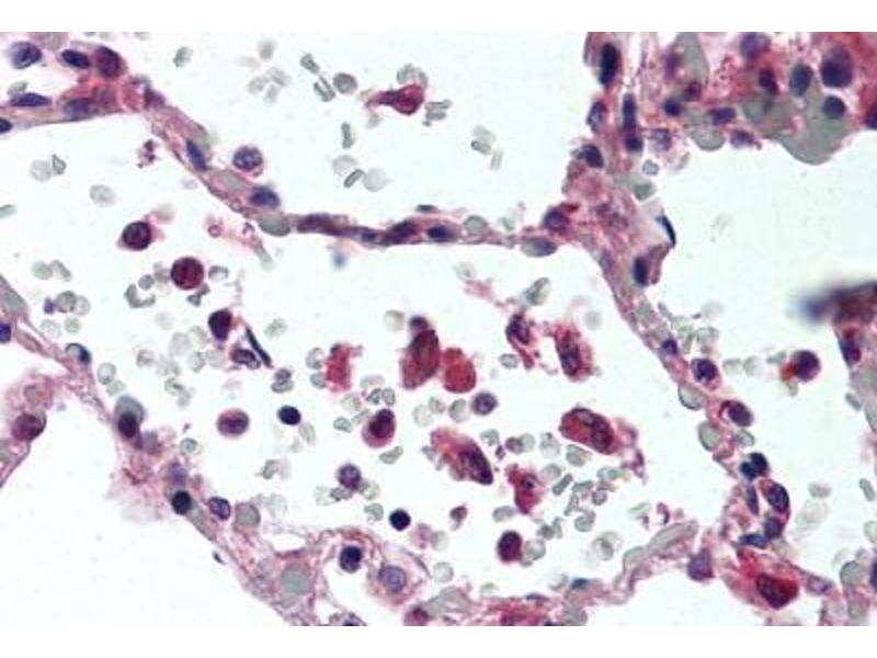 Immunohistochemistry (Paraffin-embedded Sections) (IHC (p)) image for anti-Tumor Necrosis Factor (TNF) antibody (ABIN305730)