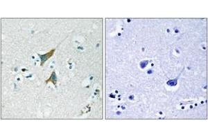 Image no. 2 for anti-Dual Specificity Phosphatase 1 (DUSP1) (AA 318-367) antibody (ABIN1532716)