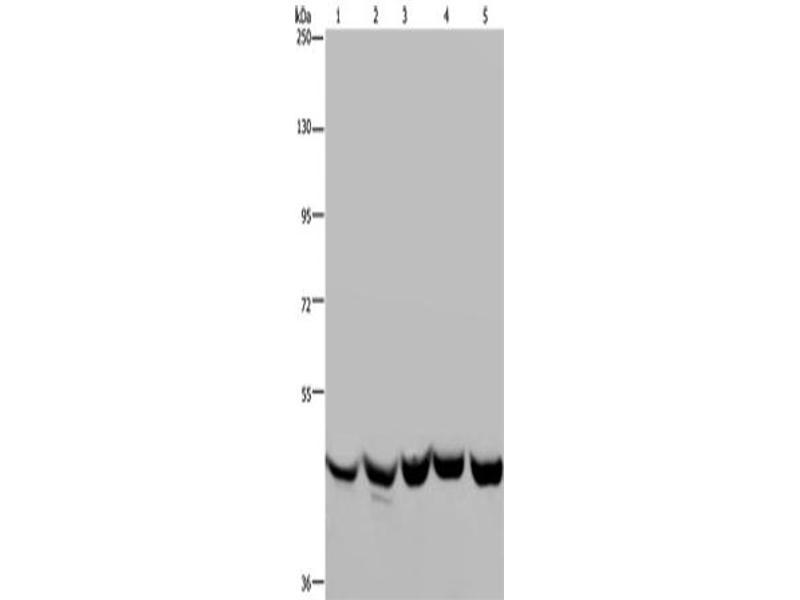 Image no. 3 for anti-Tyrosyl-tRNA Synthetase 2, Mitochondrial (YARS2) antibody (ABIN2429421)