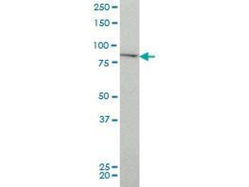 Immunohistochemistry (IHC) image for anti-CHUK antibody (conserved Helix-Loop-Helix Ubiquitous Kinase) (AA 646-745) (ABIN393762)