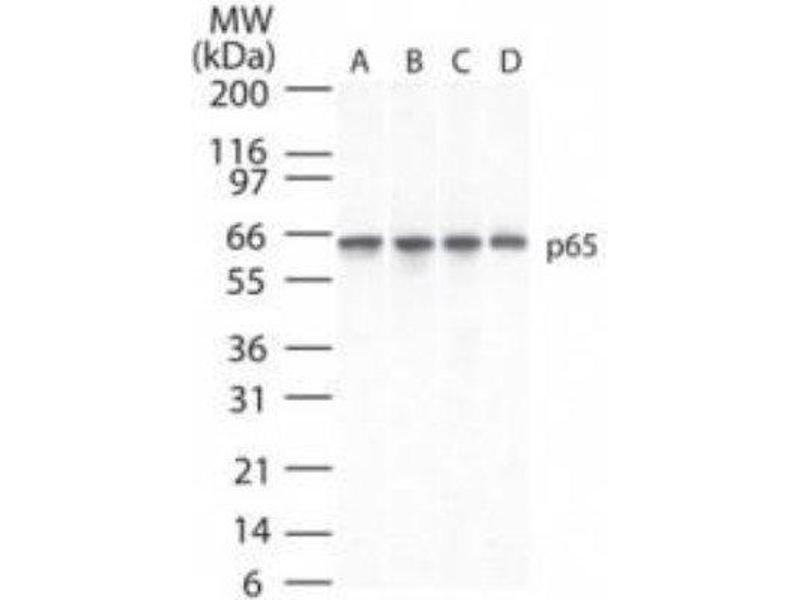 Western Blotting (WB) image for anti-Nuclear Factor-KB P65 (NFkBP65) antibody (ABIN4349897)