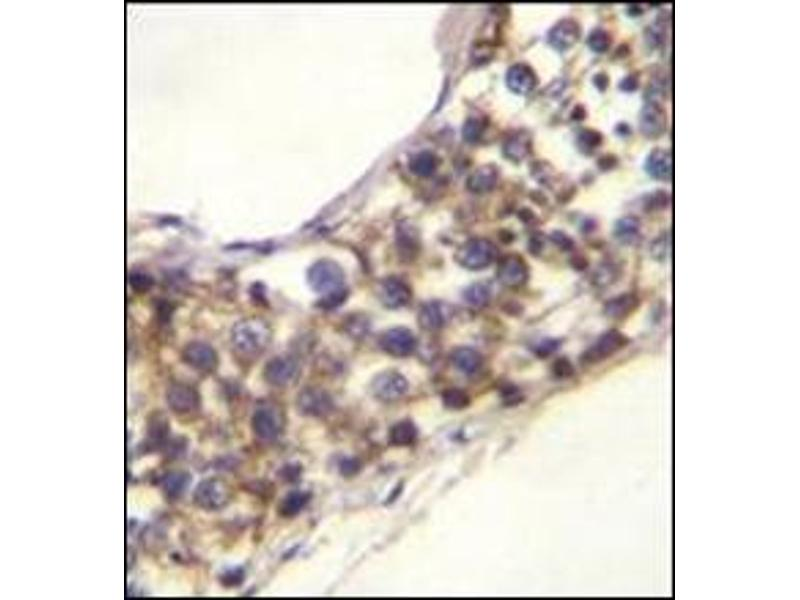 Immunohistochemistry (Paraffin-embedded Sections) (IHC (p)) image for anti-Poly(A)-Specific Ribonuclease (PARN)-Like Domain Containing 1 (PNLDC1) (AA 456-486), (C-Term) antibody (ABIN954224)