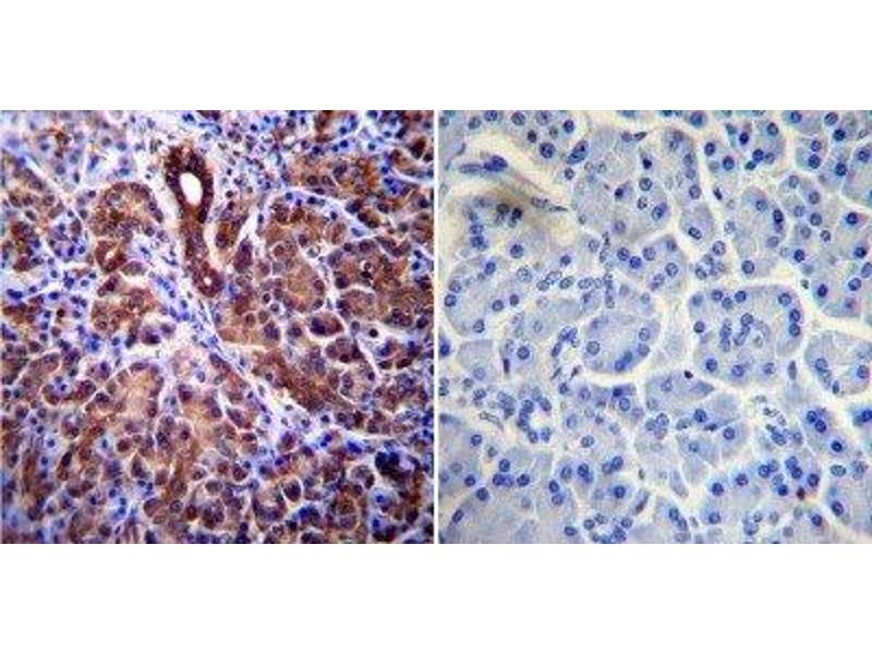 Immunohistochemistry (Paraffin-embedded Sections) (IHC (p)) image for anti-CFTR antibody (Cystic Fibrosis Transmembrane Conductance Regulator (ATP-Binding Cassette Sub-Family C, Member 7)) (ABIN152670)