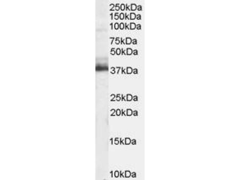 Western Blotting (WB) image for anti-Tripartite Motif Containing 5 (TRIM5) (N-Term) antibody (ABIN184983)