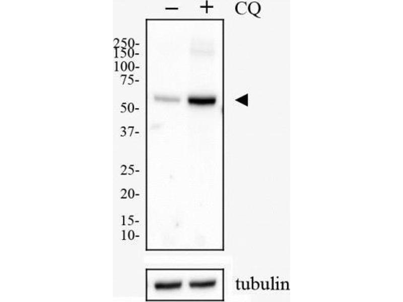 Western Blotting (WB) image for anti-SQSTM1 antibody (Sequestosome 1) (Internal Region) (ABIN449246)