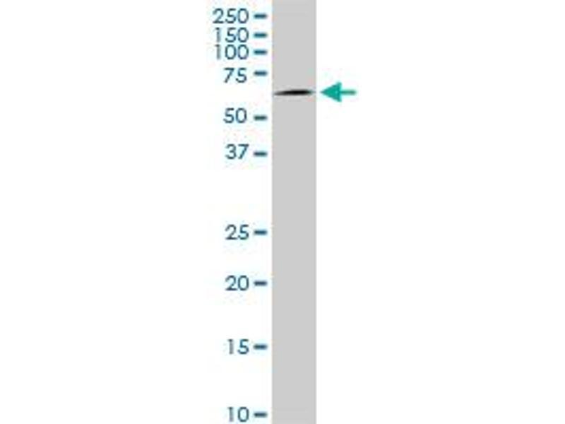 Western Blotting (WB) image for anti-AKT antibody (V-Akt Murine Thymoma Viral Oncogene Homolog 1) (AA 1-480) (ABIN559829)