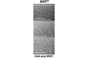 Immunohistochemistry (IHC) image for anti-Microtubule-Associated Protein tau (MAPT) (Middle Region) antibody (ABIN2783223)