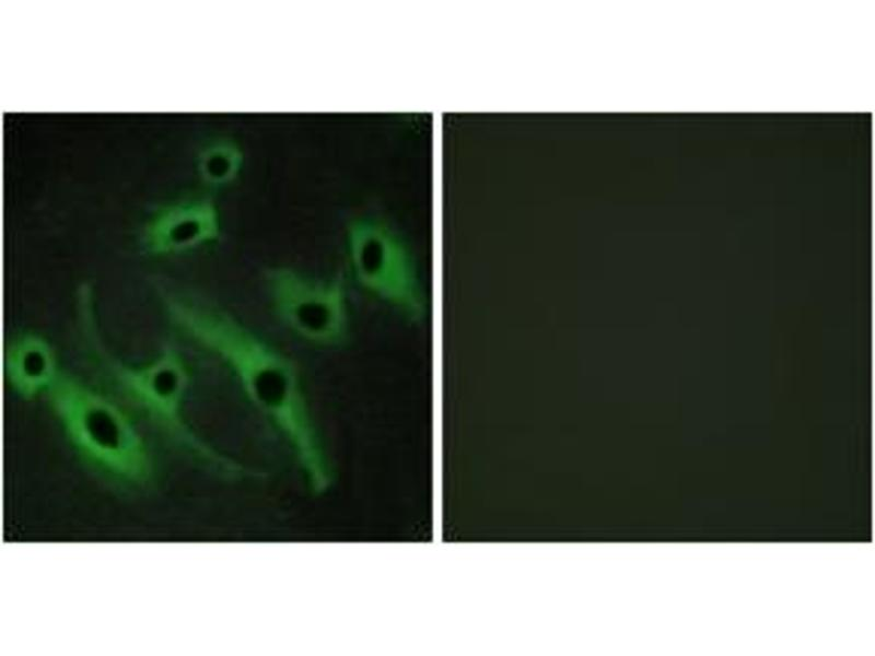 Immunofluorescence (IF) image for anti-V-Erb-B2 erythroblastic Leukemia Viral Oncogene Homolog 2, Neuro/glioblastoma Derived Oncogene Homolog (Avian) (ERBB2) (AA 641-690) antibody (ABIN1534423)