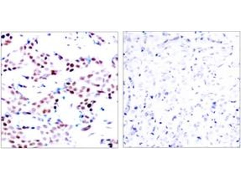 Immunohistochemistry (IHC) image for anti-C-JUN antibody (Jun Proto-Oncogene) (pThr91) (ABIN1531888)