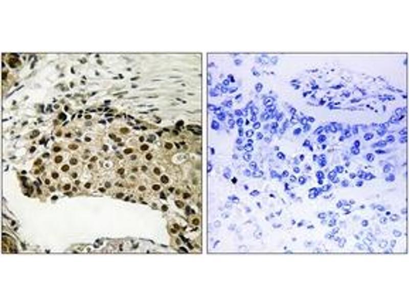 Immunohistochemistry (IHC) image for anti-Ribosomal Protein S6 Kinase, 90kDa, Polypeptide 5 (RPS6KA5) (AA 181-230), (pSer212) antibody (ABIN1532064)