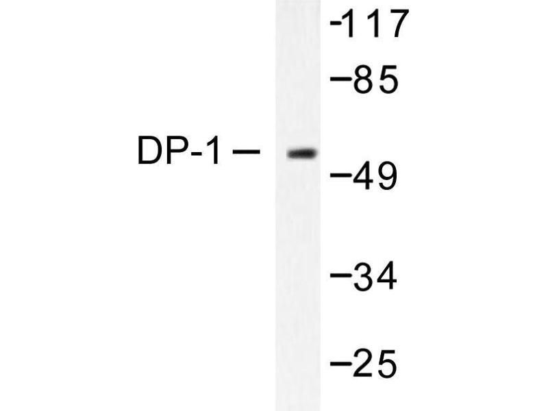 image for anti-Transcription Factor Dp-1 (TFDP1) antibody (ABIN265387)