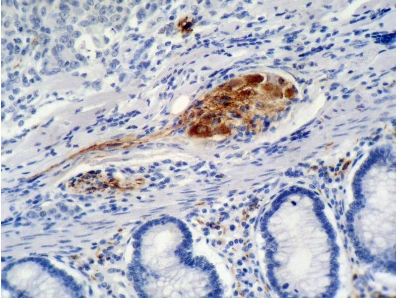 Immunohistochemistry (IHC) image for anti-CDKN1A antibody (Cyclin-Dependent Kinase Inhibitor 1A (p21, Cip1)) (ABIN94444)