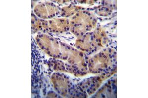 Image no. 3 for anti-Cytochrome P450, Family 2, Subfamily S, Polypeptide 1 (CYP2S1) (AA 399-428), (C-Term) antibody (ABIN656566)