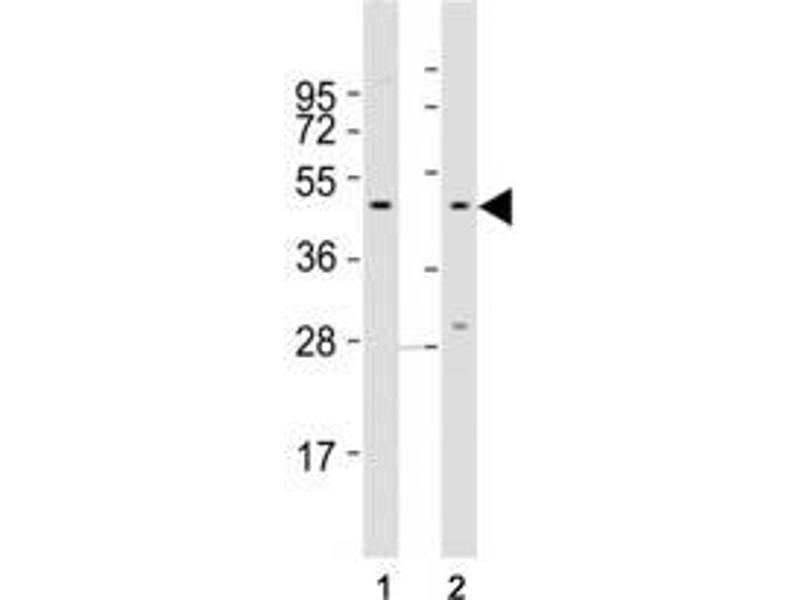 Image no. 2 for anti-Chemokine (C-C Motif) Receptor 1 (CCR1) (AA 13-44) antibody (ABIN3028520)