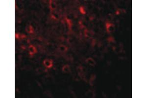 Image no. 3 for anti-Family with Sequence Similarity 120A (FAM120A) (Internal Region) antibody (ABIN6657094)