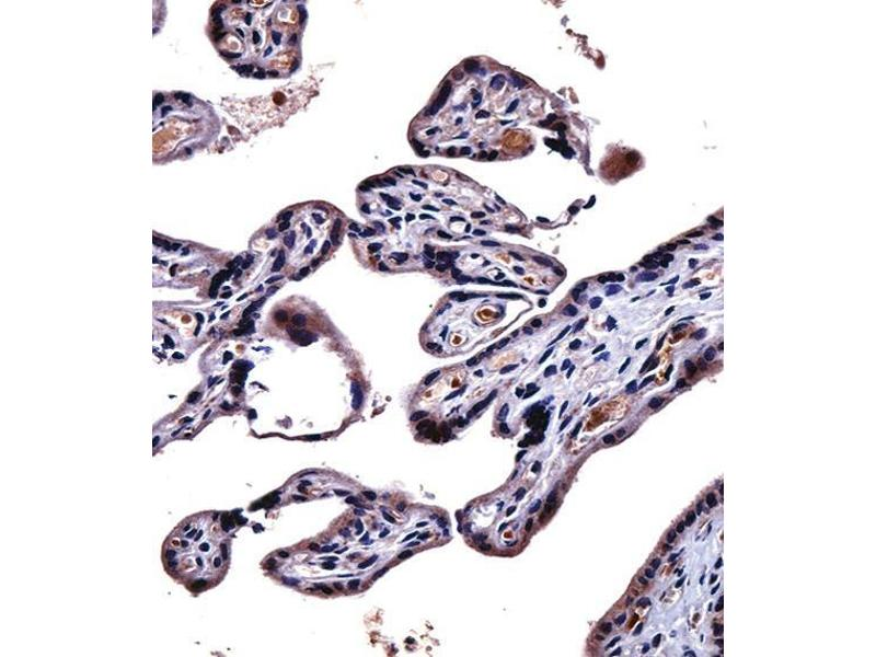 Immunohistochemistry (IHC) image for anti-IL9 Receptor antibody (Interleukin 9 Receptor) (Center) (ABIN2489311)