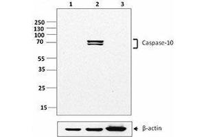 Western Blotting (WB) image for anti-Caspase 10 antibody (Caspase 10, Apoptosis-Related Cysteine Peptidase) (ABIN2666064)