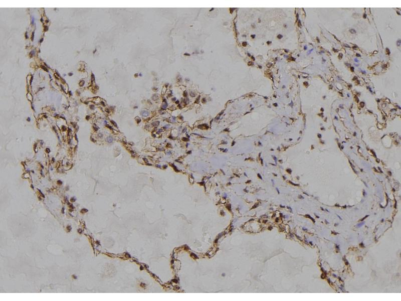 Image no. 2 for anti-Tumor Necrosis Factor Receptor Superfamily, Member 21 (TNFRSF21) (pThr460) antibody (ABIN6269721)