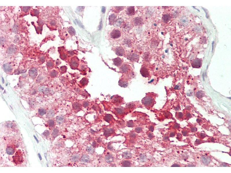 Immunohistochemistry (IHC) image for anti-RuvB-Like 2 (E. Coli) (RUVBL2) (N-Term) antibody (ABIN2779601)