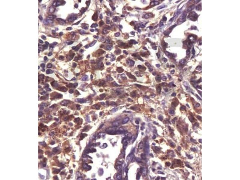 Immunohistochemistry (Paraffin-embedded Sections) (IHC (p)) image for anti-ATP-Binding Cassette, Sub-Family B (MDR/TAP), Member 1B (ABCB1B) antibody (ABIN2506645)