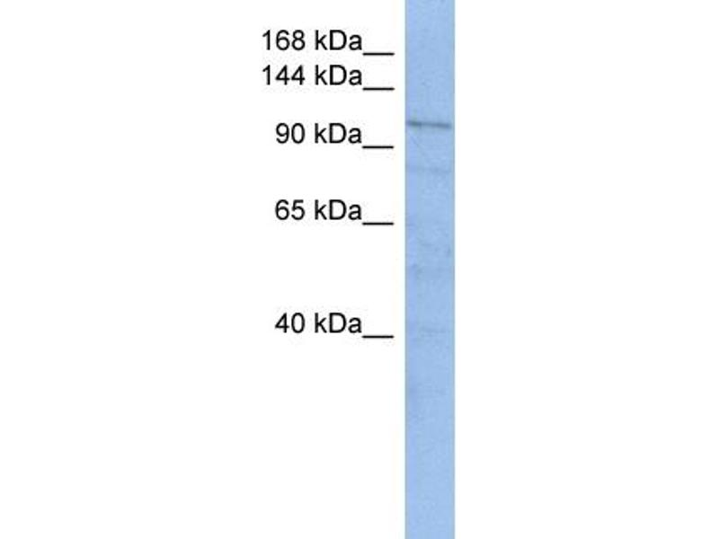 Western Blotting (WB) image for anti-Trafficking Protein, Kinesin Binding 1 (TRAK1) (Middle Region) antibody (ABIN503531)