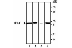 Western Blotting (WB) image for anti-CDK4 antibody (Cyclin-Dependent Kinase 4) (ABIN967404)