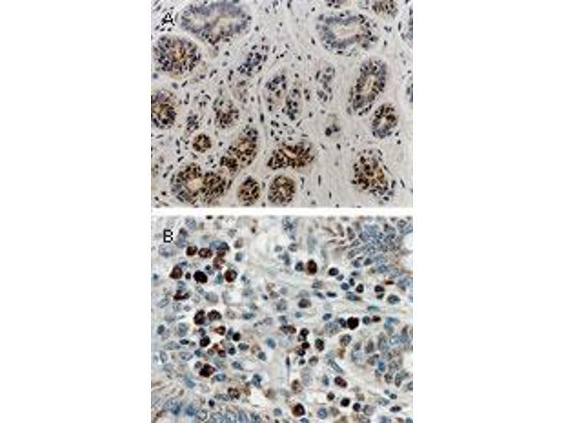 image for anti-Receptor (TNFRSF)-Interacting serine-threonine Kinase 1 (RIPK1) (AA 269-287) antibody (ABIN957227)