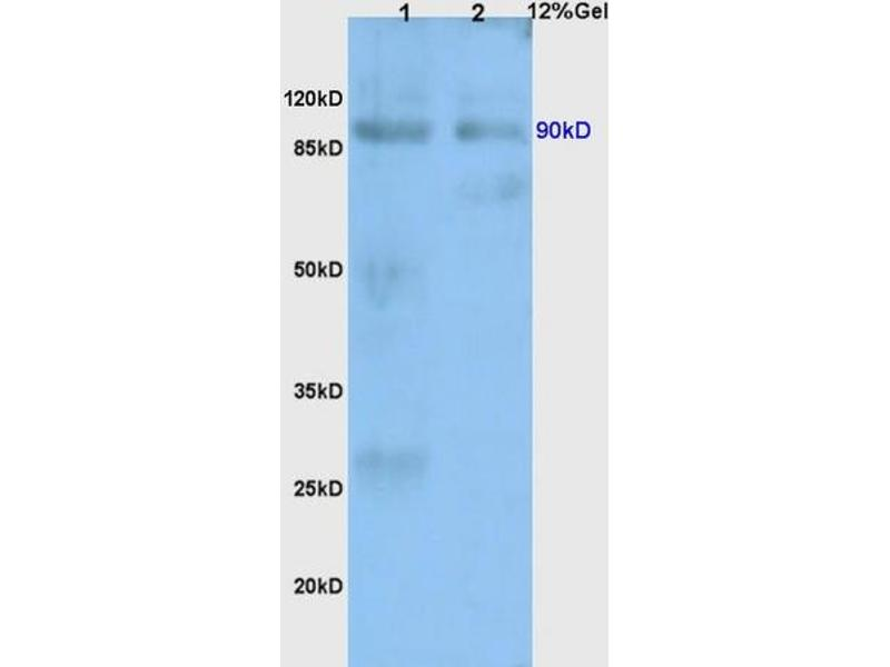 SDS-PAGE (SDS) image for anti-Toll-Like Receptor 4 (TLR4) (AA 780-830) antibody (ABIN736491)