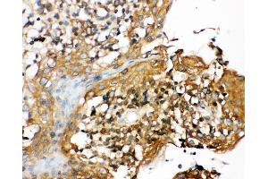 Image no. 1 for anti-NLR Family, Pyrin Domain Containing 3 (NLRP3) (AA 12-31), (N-Term) antibody (ABIN3044250)