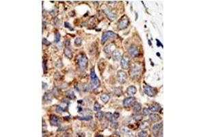 image for anti-Protein Inhibitor of Activated STAT, 4 (PIAS4) (C-Term) antibody (ABIN356771)
