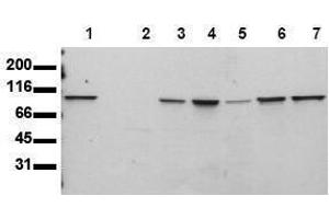 Western Blotting (WB) image for anti-STAT6 antibody (Signal Transducer and Activator of Transcription 6, Interleukin-4 Induced) (ABIN126902)