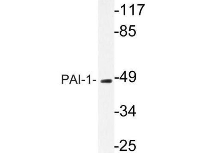 Western Blotting (WB) image for anti-serpin Peptidase Inhibitor, Clade E (Nexin, Plasminogen Activator Inhibitor Type 1), Member 1 (SERPINE1) (AA 300-400), (Internal Region) antibody (ABIN446967)