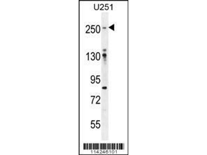 Western Blotting (WB) image for anti-Filamin A, alpha (FLNA) (AA 1025-1054), (Tyr1046) antibody (ABIN392193)