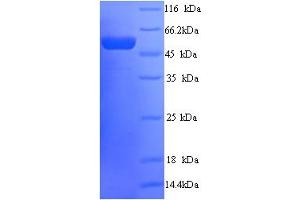 Image no. 1 for Peter Pan Homolog (Drosophila) (PPAN) (AA 1-473), (full length) protein (His tag) (ABIN5714474)
