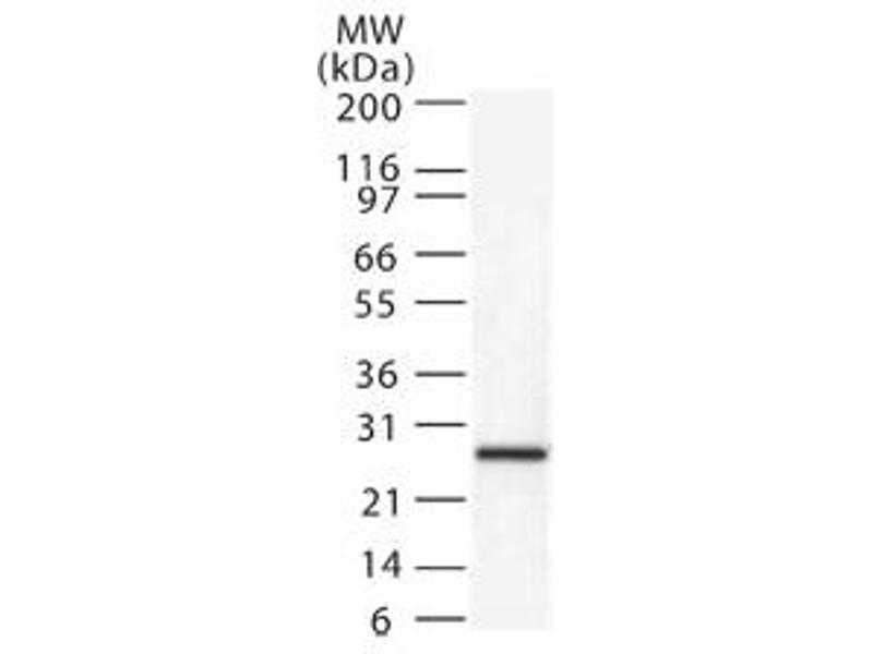 Western Blotting (WB) image for anti-Second Mitochondria-Derived Activator of Caspase (DIABLO) antibody (ABIN252299)