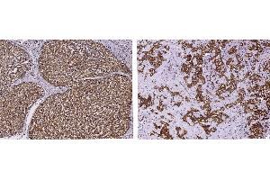Image no. 1 for anti-phosphopantothenoylcysteine Decarboxylase (PPCDC) (AA 1-204) antibody (ABIN2692829)