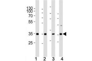 Image no. 2 for anti-Cyclin D3 (CCND3) (AA 33-66) antibody (ABIN3030599)