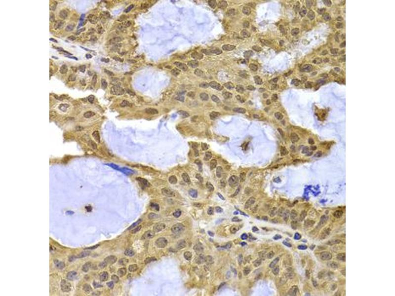 Immunohistochemistry (Paraffin-embedded Sections) (IHC (p)) image for anti-Exportin 5 (XPO5) antibody (ABIN2970020)