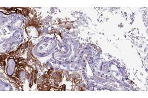 Immunohistochemistry (IHC) image for anti-Complement Decay-Accelerating Factor (CD55) antibody (ABIN6260634)