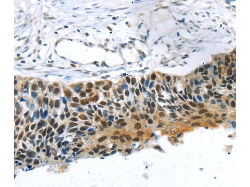 Immunohistochemistry (IHC) image for anti-Transcriptional Regulating Factor 1 (TRERF1) antibody (ABIN2427461)
