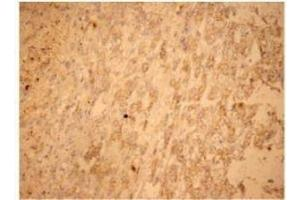 Immunohistochemistry (Paraffin-embedded Sections) (IHC (p)) image for anti-FAS antibody (Fas (TNF Receptor Superfamily, Member 6)) (ABIN266061)