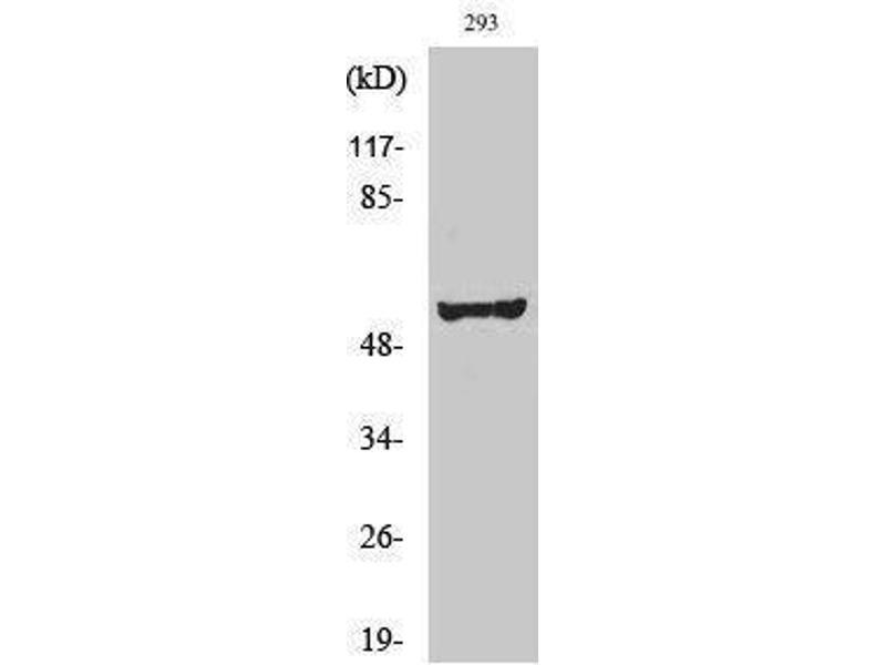 Image no. 1 for anti-V-Src Sarcoma (Schmidt-Ruppin A-2) Viral Oncogene Homolog (Avian) (SRC) (Tyr1141) antibody (ABIN3184110)