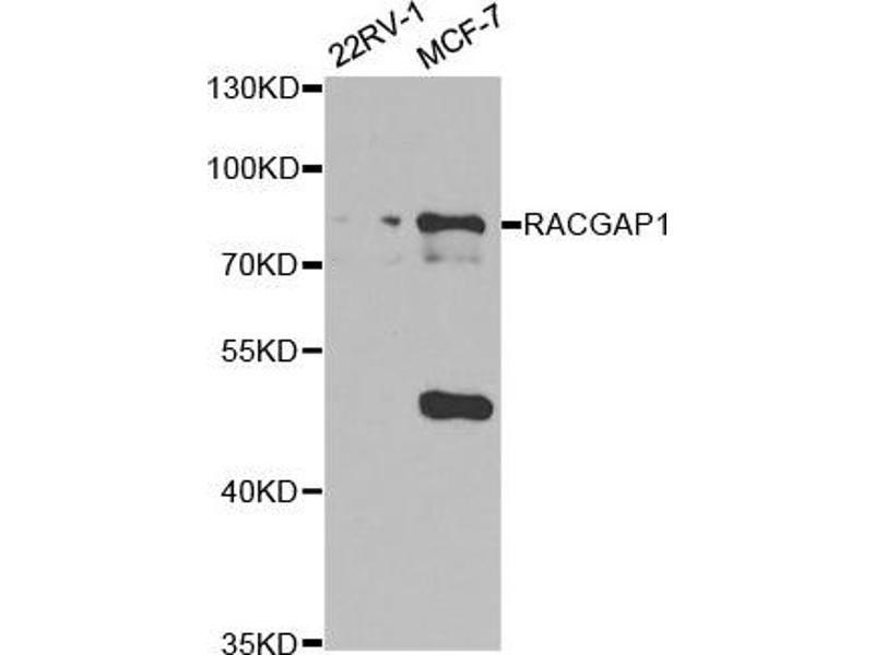 Western Blotting (WB) image for anti-Rac GTPase Activating Protein 1 (RACGAP1) antibody (ABIN1876486)