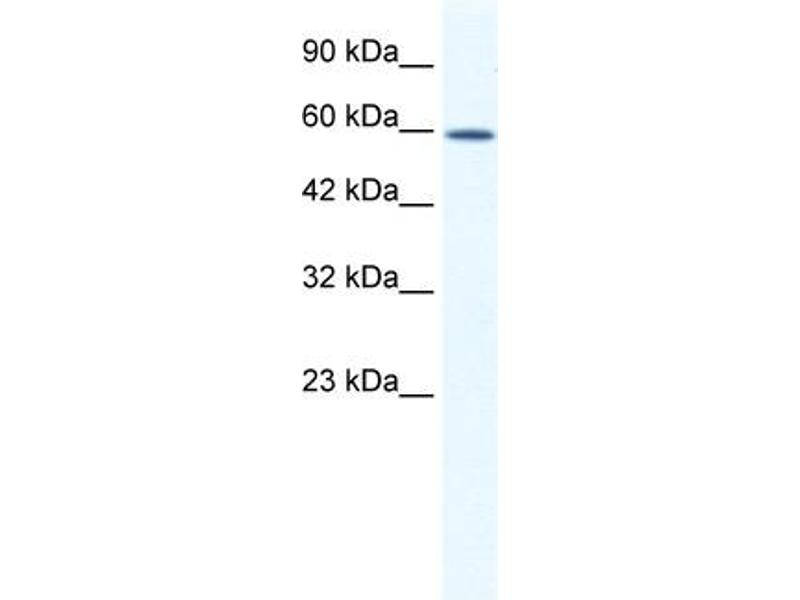 Western Blotting (WB) image for anti-DEAD (Asp-Glu-Ala-Asp) Box Polypeptide 5 (DDX5) (C-Term) antibody (ABIN183331)