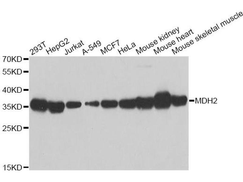 Image no. 1 for anti-Malate Dehydrogenase 2, NAD (Mitochondrial) (MDH2) antibody (ABIN6568017)