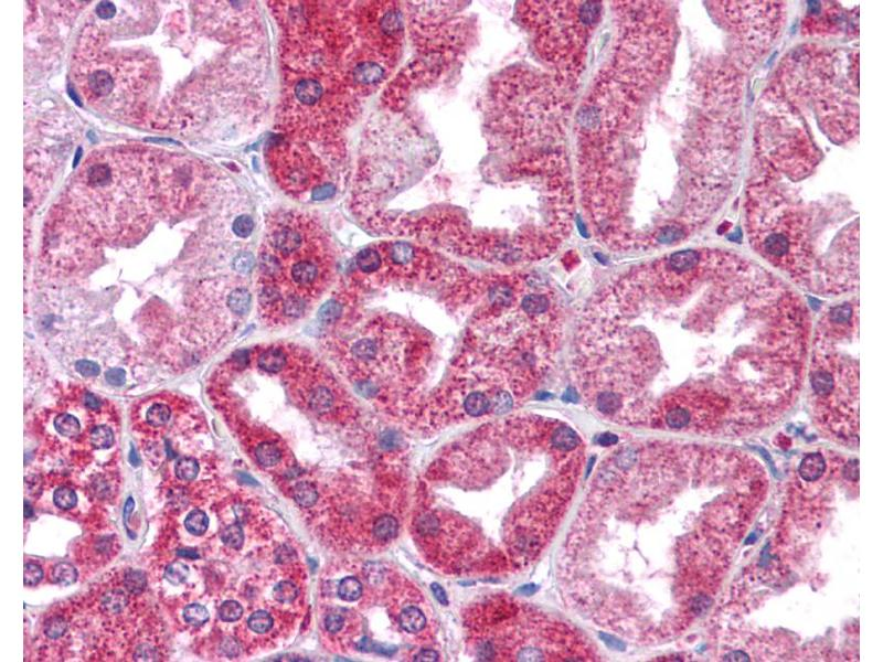 Immunohistochemistry (IHC) image for anti-STAT3 antibody (Signal Transducer and Activator of Transcription 3 (Acute-Phase Response Factor)) (N-Term) (ABIN2780479)