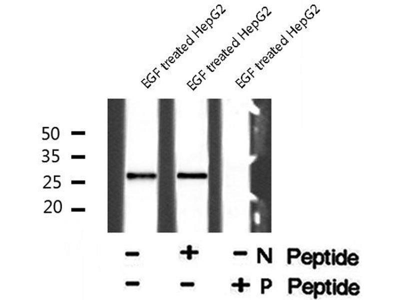 Western Blotting (WB) image for anti-Cyclin-Dependent Kinase Inhibitor 1B (p27, Kip1) (CDKN1B) (pSer178) antibody (ABIN6271270)